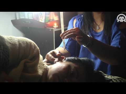 اليمن اليوم- شاهد  أغرب طريقة لتنظيف الأذن