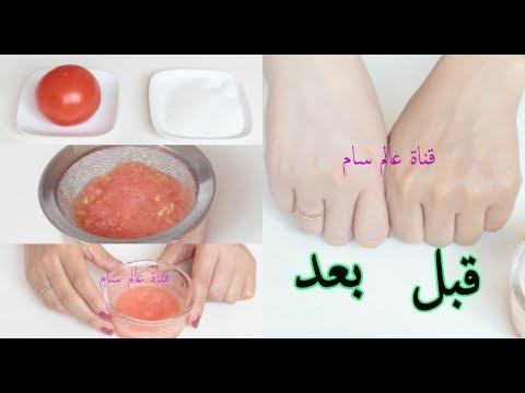 شاهد حبة طماطم واحدة تكفي لتبييض البشرة خلال 5 دقائق فقط