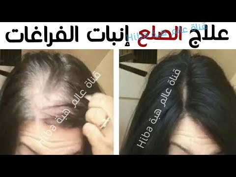 اليمن اليوم- تعرّف على أقوى وصفة لمنع تساقط الشعر
