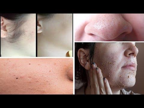وصفة مركبة لإزالة الشعر من الوجه و الرؤوس السوداء والبيضاء