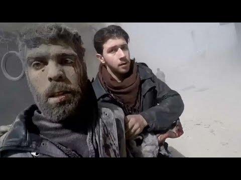 بالفيديو سكَّن الغوطة الشرقية ممزقون تحت تأثير القصف
