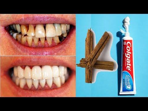 وصفة بسيطة لتبيض الأسنان بشكل سريع