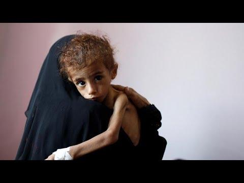 شاهد الأمم المتحدة تُحذر من مجاعة وشيكة ستضرب في اليمن