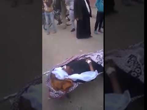 اليمن اليوم- شاهد مواطن يصرخ لعدم وجود أطباء في مستشفى أبو قرقاص المركزي