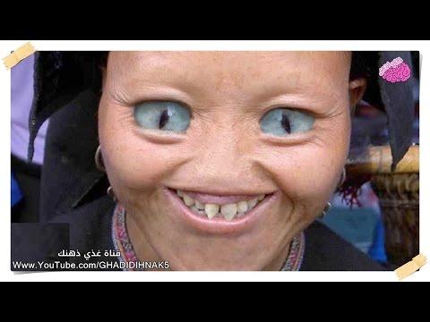 اليمن اليوم- شاهد 10 أشخاص ولدوا بطفرات جينية صادمة