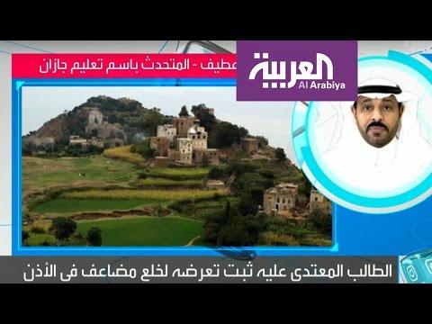 اليمن اليوم- نقل المعلم عقوبة قطع إذن طالب في جازان السعودية