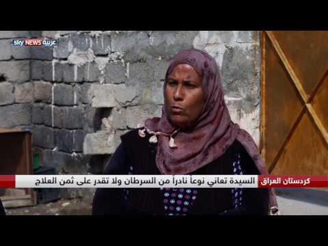 اليمن اليوم- شاهد جولة في منزل السيدة العراقية التي تأكل الأفاعي