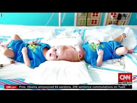 اليمن اليوم- شاهد فصل رأس توأمين داخل غرفة العمليات