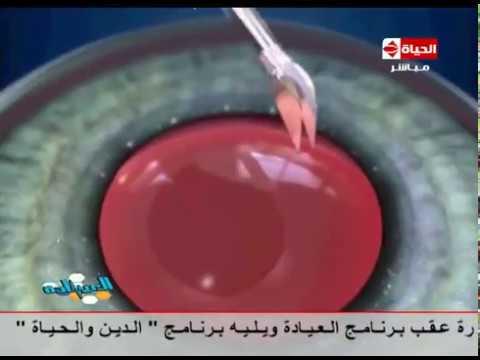 اليمن اليوم- شاهد فيديو لحالة تجري عملية إزالة المياه البيضاء
