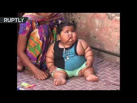 اليمن اليوم- شاهد رضيعة هندية عمرها 8 أشهر تزن 17 كيلوغرامًا