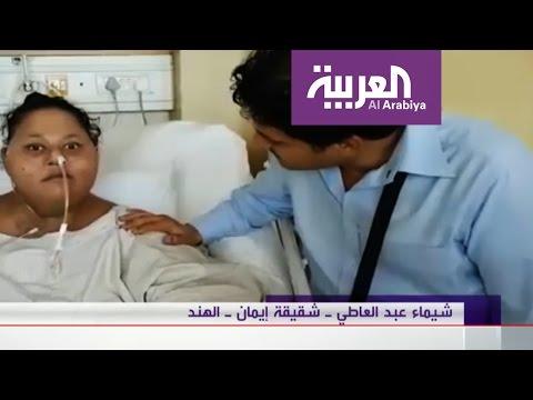 اليمن اليوم- طبيب في أبوظبي يتعهد بإنقاذ أضخم طفلة في العالم