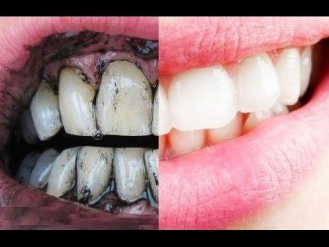 اليمن اليوم- شاهد الطريقة السحرية لتبييض الأسنان بالملح