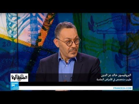 اليمن اليوم- شاهد أهم الإجراءات الوقائية والعلاجية ضد لأكزيما