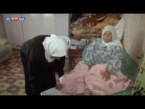 اليمن اليوم- شاهد ليلى أرملة ومصابة بالسرطان تروى مأساتها