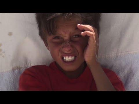 اليمن اليوم- شاهد سكان الرقة من مشقة النزوح إلى لهيب المخيمات في الصيف