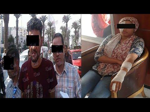 اليمن اليوم- شاهد رجل يتسبب في تشويه جسد أستاذة