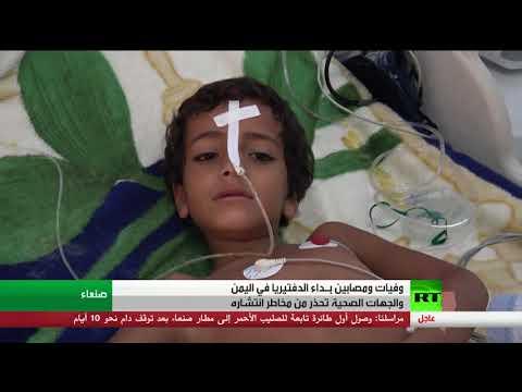 تفشي داء الدفتيريا في اليمن