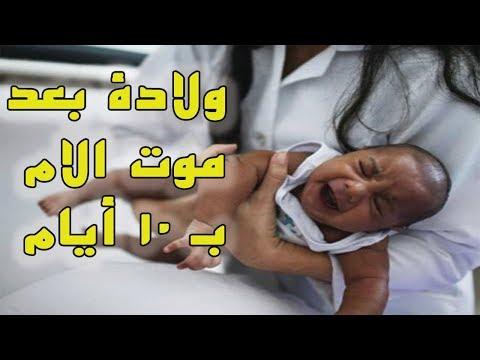 شاهد امرأة حامل تلد بعد وفاتها بـ10 أيام كاملة