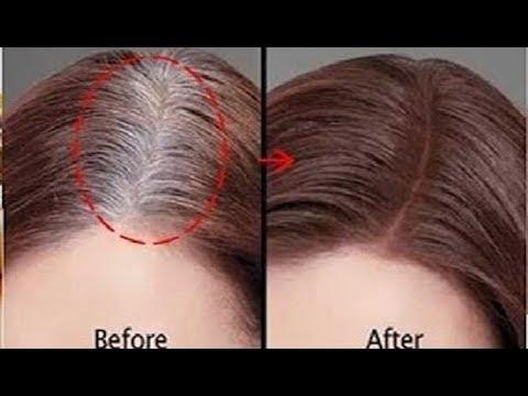 تركيبة تخترق فروة الرأس وتعالج شيب الشعر