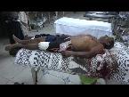شاهد استشهاد مواطن وإصابة أخر بقصف مدفعي للمليشيات الحوثية